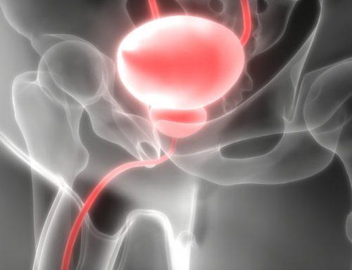 Καρκίνος προστάτη: Ωφελεί ή βλάπτει τελικά ο τακτικός έλεγχος του PSA;