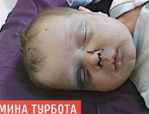 ΣΟΚ: Μητέρα έσπασε στο ξύλο το ενός μηνός μωρό της! Δίνει μάχη για τη ζωή του (ΦΩΤΟ)
