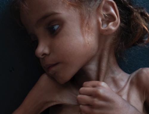 Υεμένη: Χιλιάδες παιδιά πεθαίνουν, αλλά…. δεν είναι δικά μας