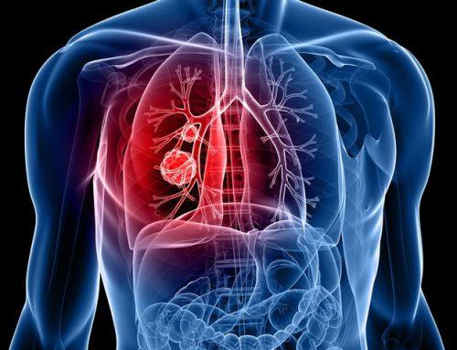 Καρκίνος του πνεύμονα: Περισσότερες απο 7000 νέες περιπτώσεις κάθε χρόνο στην Ελλάδα