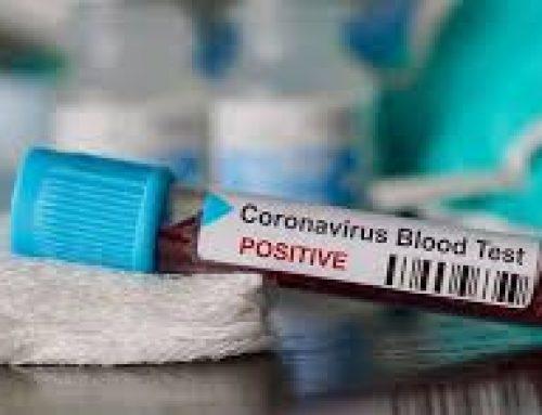 63χρονη από το Σπαθοβούνι νοσηλεύεται στην Αθήνα με κορωνοϊό