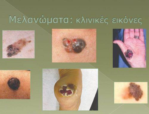 Ραγδαία αύξηση στο μελάνωμα δέρματος στη Νότια Πελοπόννησο